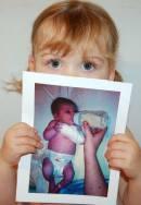 Meningitis baby Megan